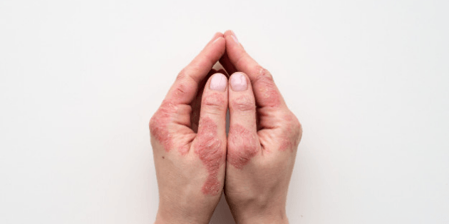Homeopathy Treatments For Psoriasis